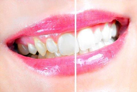 Teeth Whitening Saskatoon
